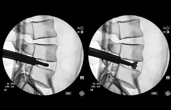 Fluoroscopy of FlareHawk7 Expandable Shaver