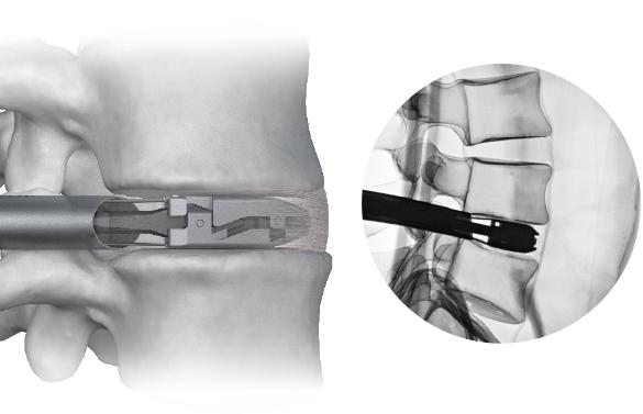 Fluoroscopy of FlareHawk7 Expandable Trial