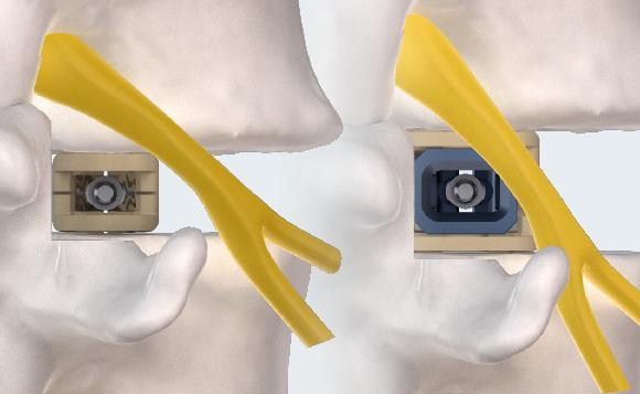 FlareHawk9 Implant in Spine