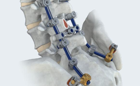 LineSider Implant Array Pelvis