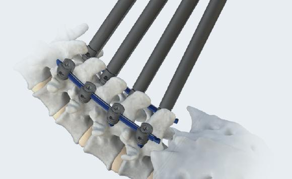 LineSider Implant Array